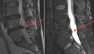 low back herniated disk before and after prolotherapy cure