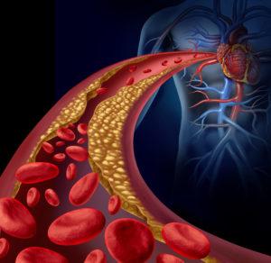 tulsa functional cardiology Lp-PLA2